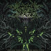 Play & Download Before the Throne of Infection by Annotations of an Autopsy | Napster