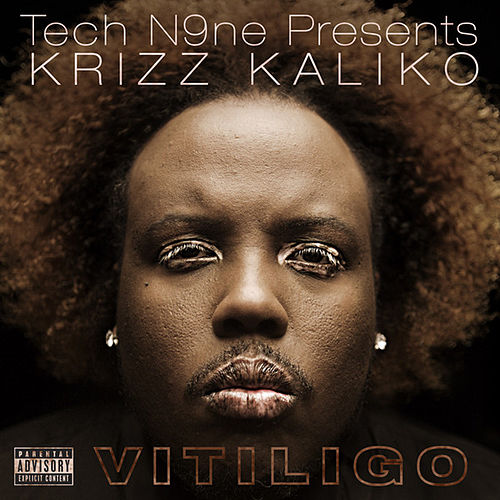 Play & Download Vitiligo by Krizz Kaliko | Napster