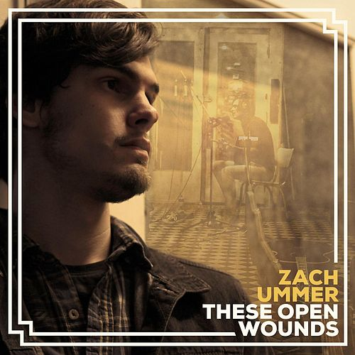Play & Download These Open Wounds by Zach Ummer | Napster