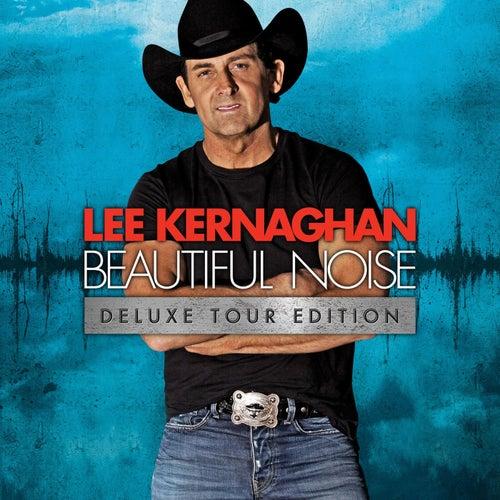 Beautiful Noise by Lee Kernaghan