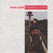 Hopeless Cases by Anne Clark