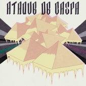 Ataque de Caspa de Various Artists