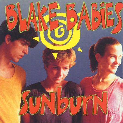 Play & Download Sunburn by Blake Babies | Napster