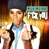 F*ck You by Alkaline