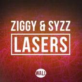 Lasers de Ziggy & Syzz