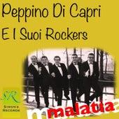 Malatia (Remastered 2012) by Peppino Di Capri