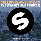 Till It Hurts Ft. Ayden (The Remixes) by Yellow Claw