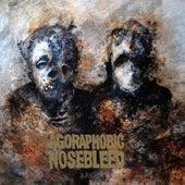 Arc von Agoraphobic Nosebleed