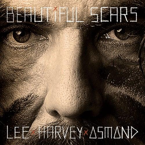 Beautiful Scars by Lee Harvey Osmond