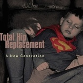 A New Generation von Total Hip Replacement