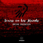 Scars On His Hands by Brian Doerksen