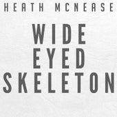 Wide Eyed Skeleton by Heath McNease