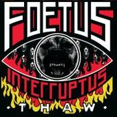 Thaw von Foetus
