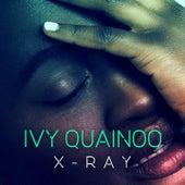 X-Ray van Ivy Quainoo