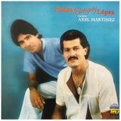 Cantando Axel Martinez de Pedro Conga