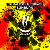 Sunburn by Crystal Rock