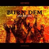 Burn Dem (Nuchie Mix) by Keywee