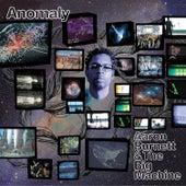 Anomaly by Aaron Burnett