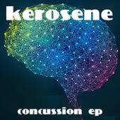 Concussion - EP de kerosene