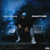 Fracture de Volts Face