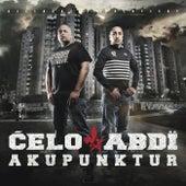 Akupunktur von Celo & Abdi