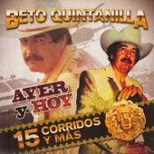 Ayer y Hoy by Beto Quintanilla