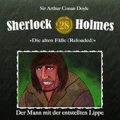 Die alten Fälle (Reloaded), Fall 28: Der Mann mit der entstellten Lippe von Sherlock Holmes