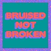 Bruised Not Broken (feat. MNEK & Kiana Ledé) (Merk & Kremont Remix) by Matoma