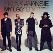 My Ugly Boy by Skunk Anansie