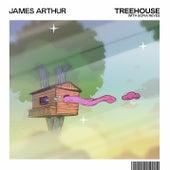 Treehouse by James Arthur