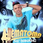 Hematoma de Mc Daninho