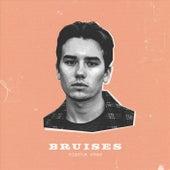 Bruises by Mischa Stas