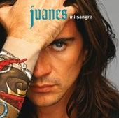 Lo Que Importa de Juanes