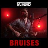 Bruises de MT Head