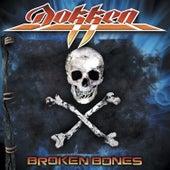 Broken Bones (Unbroken Edition) by Dokken