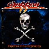 Broken Bones by Dokken