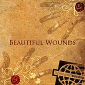 Beautiful Wounds by Wayne Watson