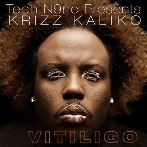 Vitiligo by Krizz Kaliko