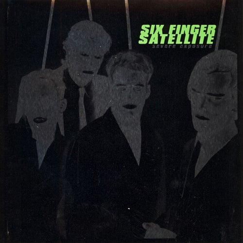Severe Exposure by Six Finger Satellite
