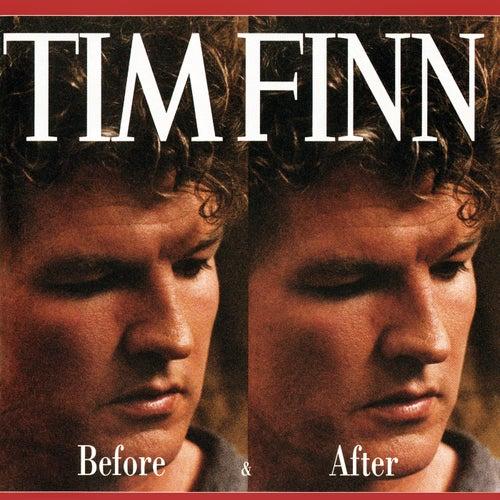 Before & After von Tim Finn