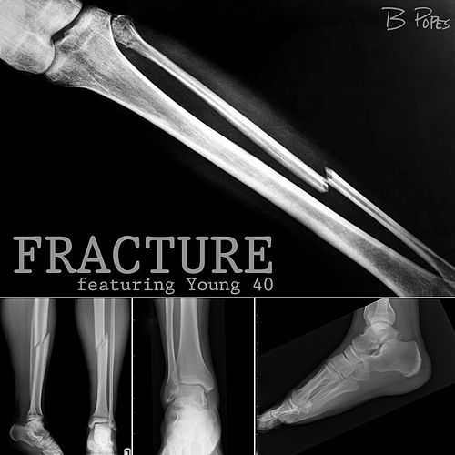 Fracture by B Popes
