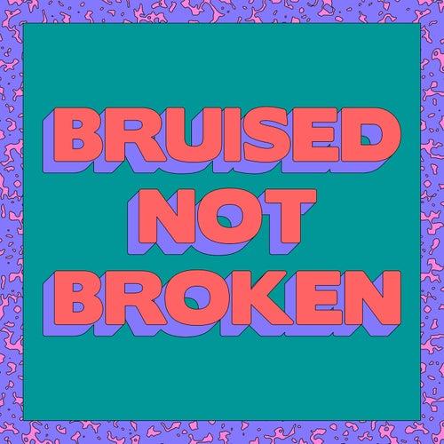 Bruised Not Broken (feat. MNEK & Kiana Ledé) (Merk & Kremont Remix) von Matoma