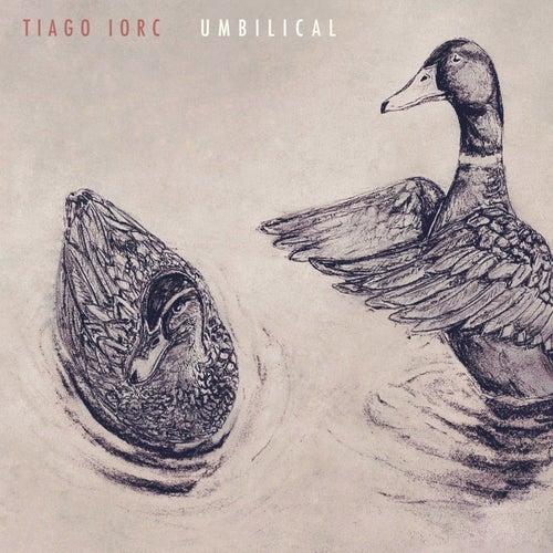 Umbilical de Tiago Iorc