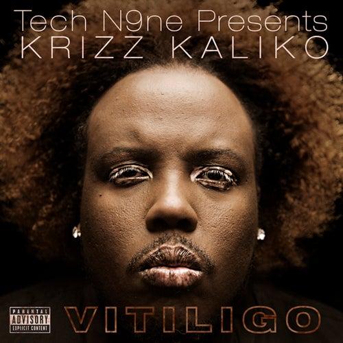 Vitiligo von Krizz Kaliko